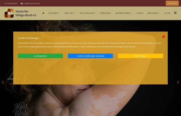Vorschau von www.vitiligo-bund.de, Deutscher Vitiligo-Bund e.V.