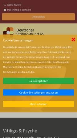 Vorschau der mobilen Webseite www.vitiligo-bund.de, Deutscher Vitiligo-Bund e.V.