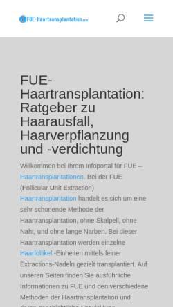 Vorschau der mobilen Webseite www.fue-haartransplantation.com, Haartransplantation nach der FUE-Methode