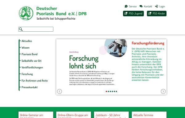Vorschau von www.psoriasis-bund.de, Deutscher Psoriasis Bund e.V.